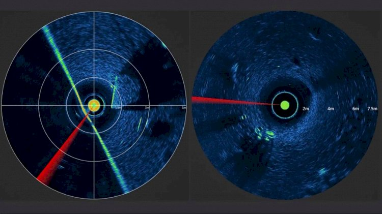 Word's smallest imaging sonar launched